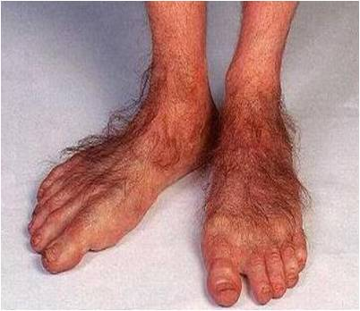 ugly hobbit feet