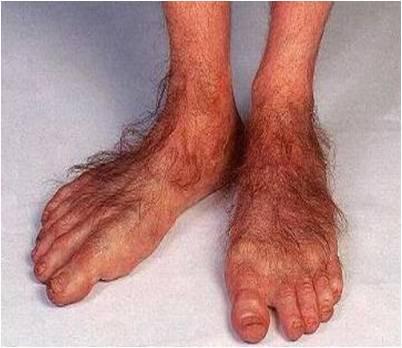 ugly hobbit feet