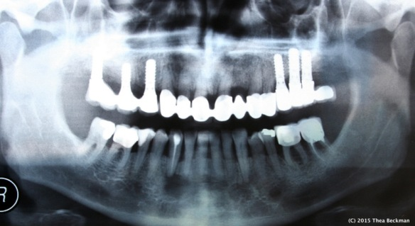 dental implant Xray